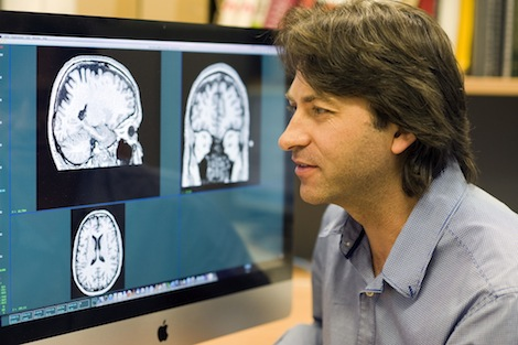 image - Paul Rasser of the Schizophrenia Research Institute